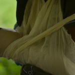 Lower arm splint